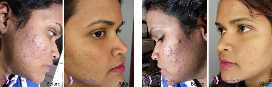 Acne and Acne Scarring Before And After